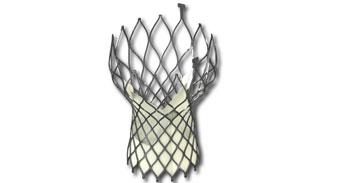VenusA-Valve®经导管人工主动脉瓣膜置换系统