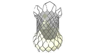 VenusP-Valve®经导管人工肺动脉瓣膜置换系统